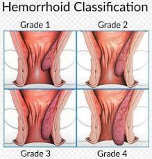 Hemoroid dereceleri