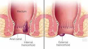 Hemoroid Tipleri