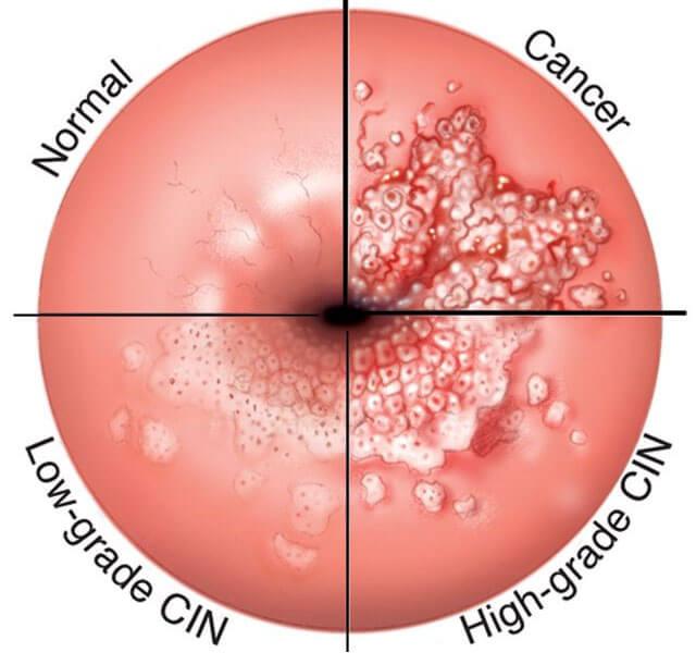 HPV Kanser Riski İçerir