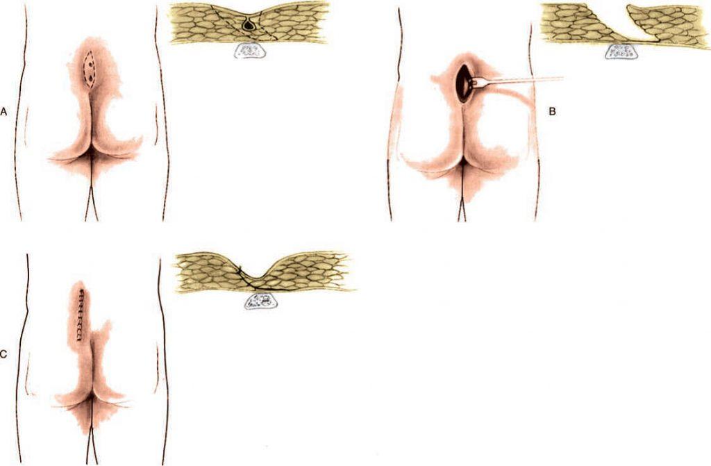 Karydakis Ameliyatı
