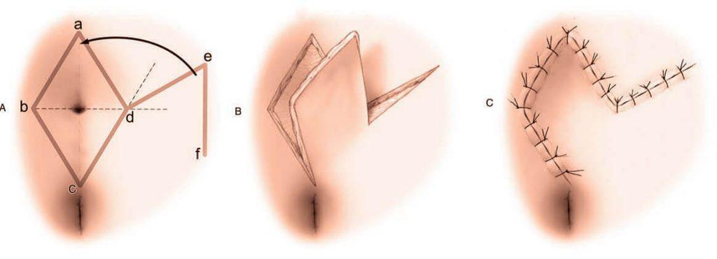 Romboid flap tekniği